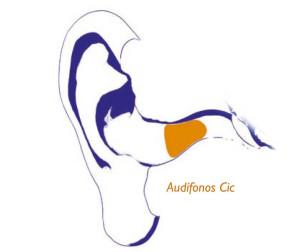 audifonos-cic-4-GA