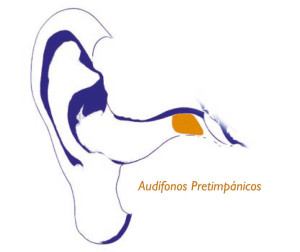 audifonos-pretimpanicos-GA
