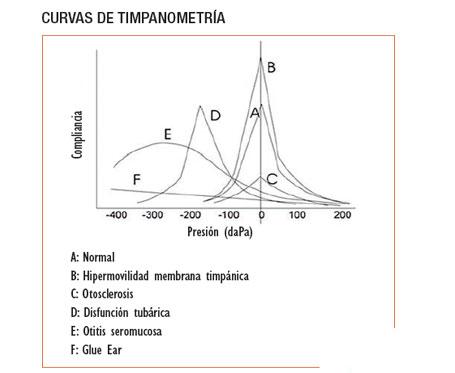 Impedanciometría: timpanometría y reflejo estapedial