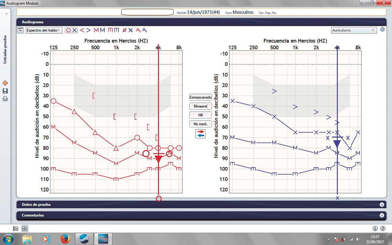 acufenometria-grafico-GA