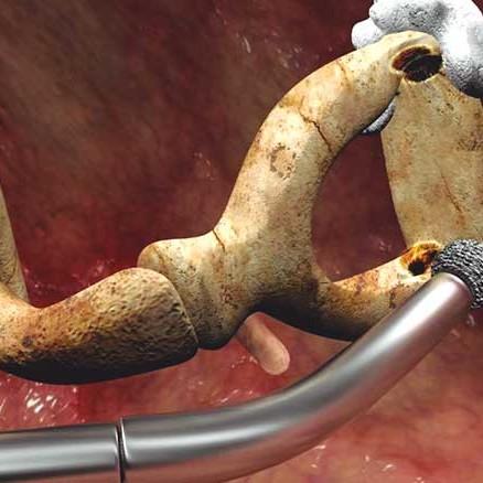 figura-2-cirugia