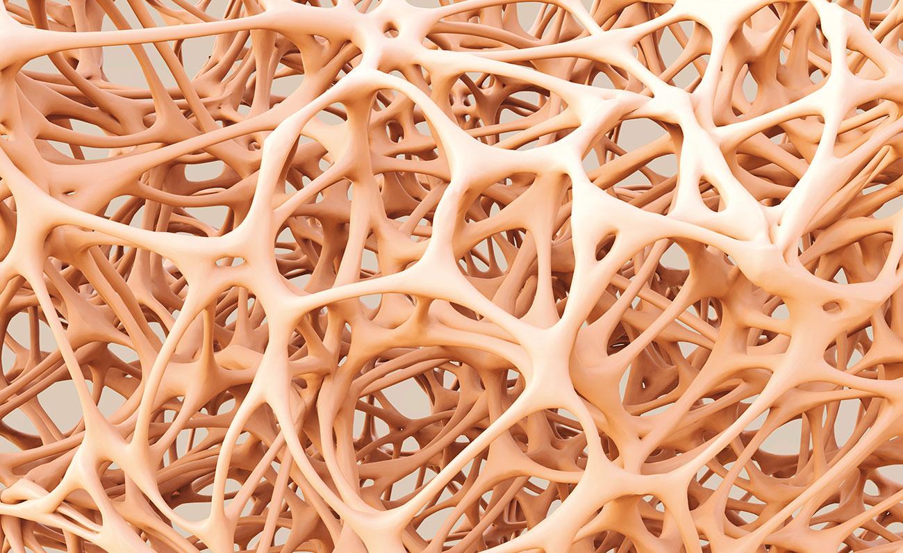 otoesclerosis-tinnitus-GA