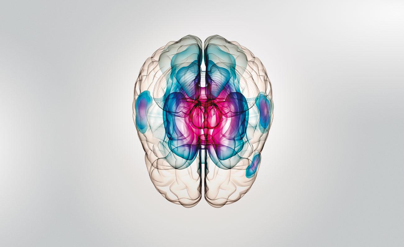 oticon-brain