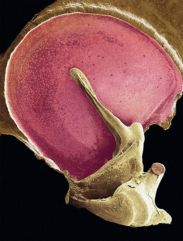 membrana-timpanica1
