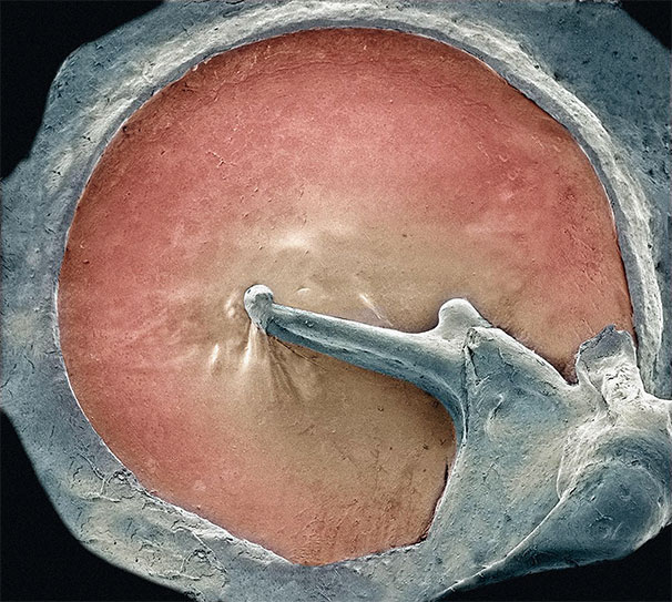 membrana-timpanica2